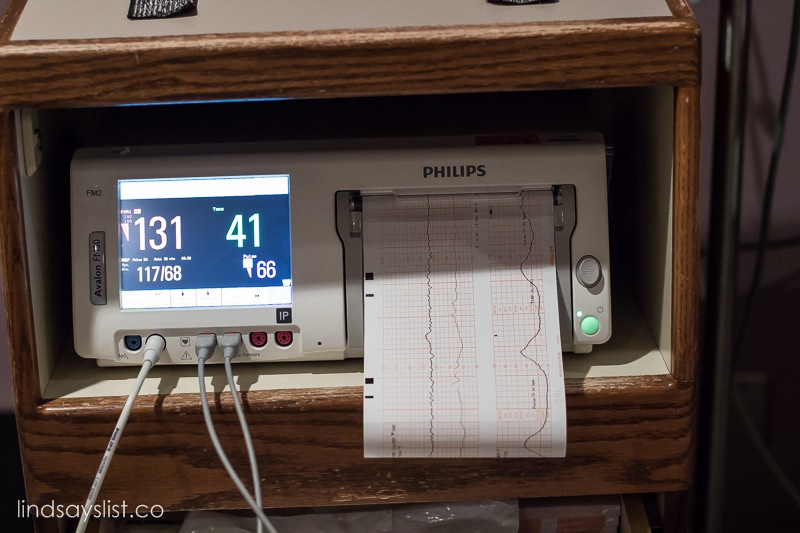 how to read contraction monitor at hospital