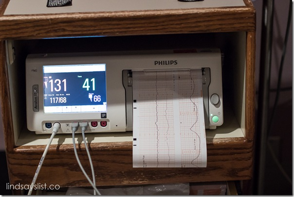 Fetal Heart Rate Monitor During Labor